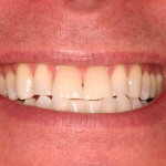 tooth whitening - post-whitening