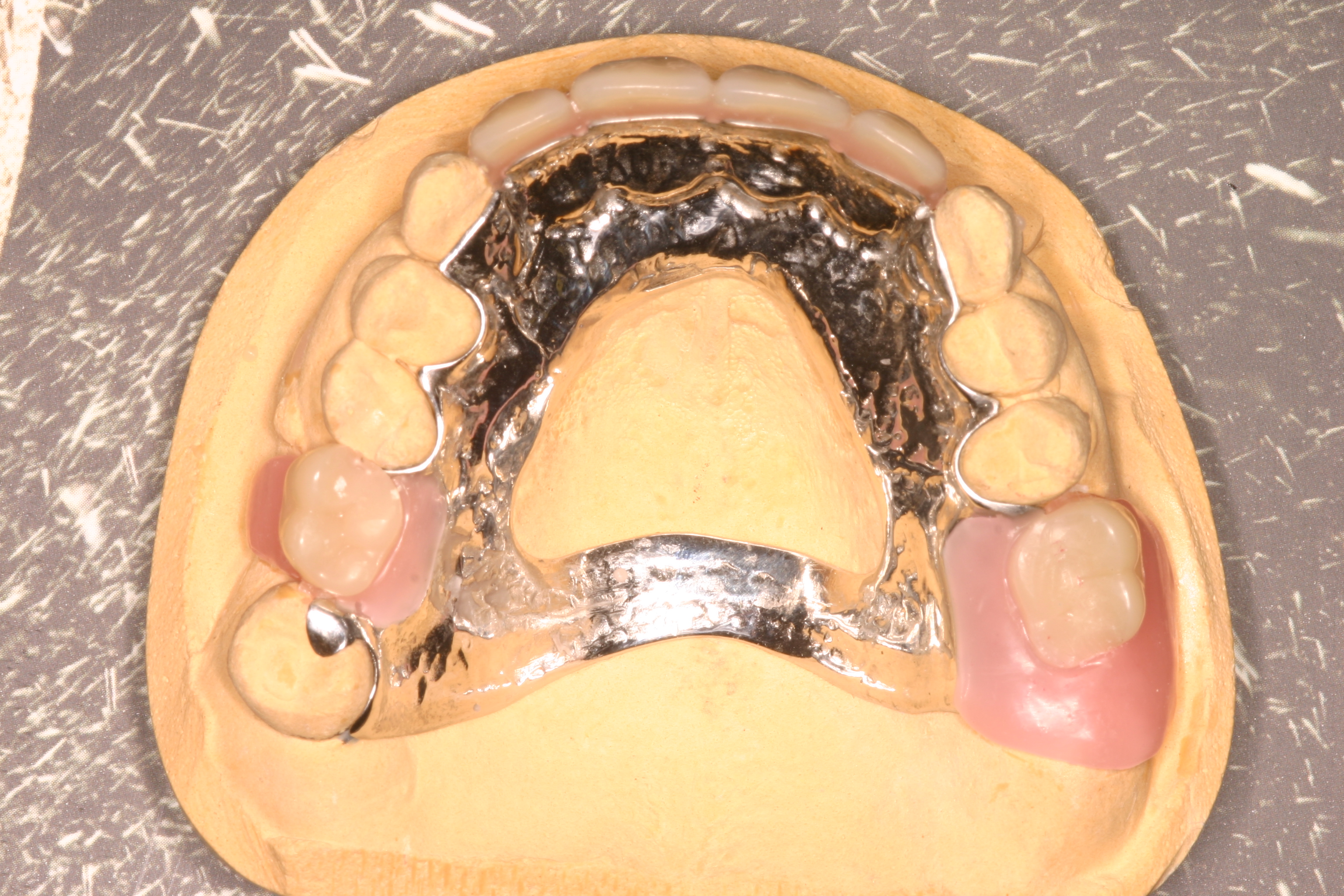 removable partial denture Typically, a removable partial denture is made of a metal framework with pink plastic to replace the gum tissue and plastic or resin denture teeth the number of missing teeth and their location will affect the comfort and stability of the removable partial denture.