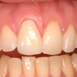 After porcelain veneer