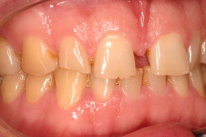 Tooth grinding of front teeth